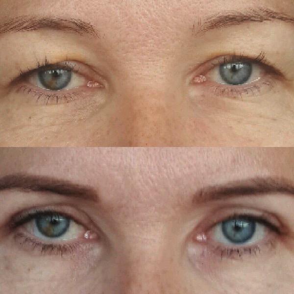 Получение максимальных результатов при проведении косметической операции