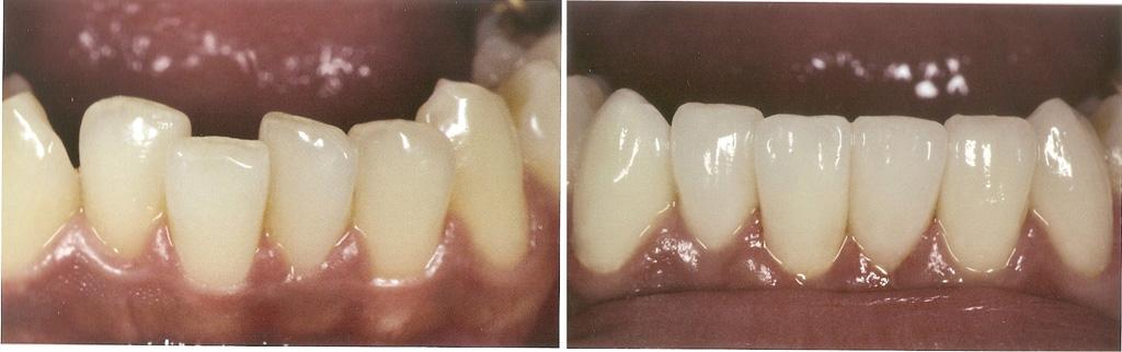 как делается отбеливание зубов