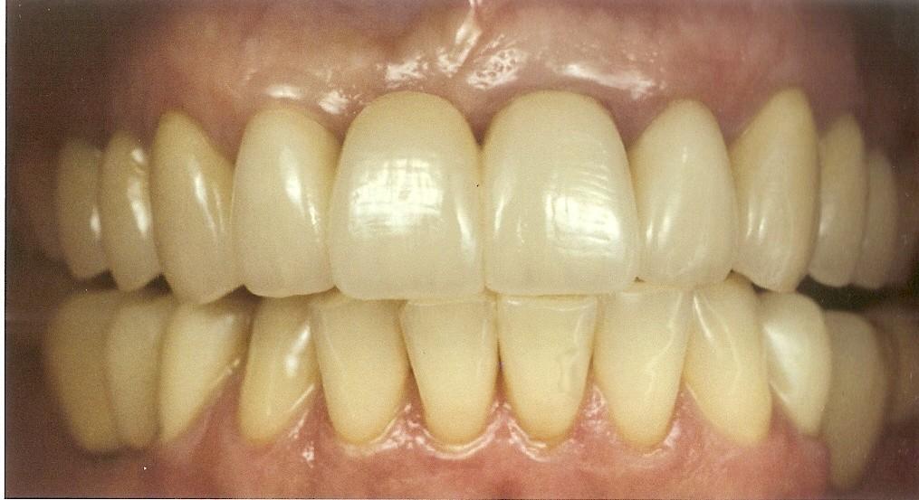 лазерное отбеливание зубов в орле