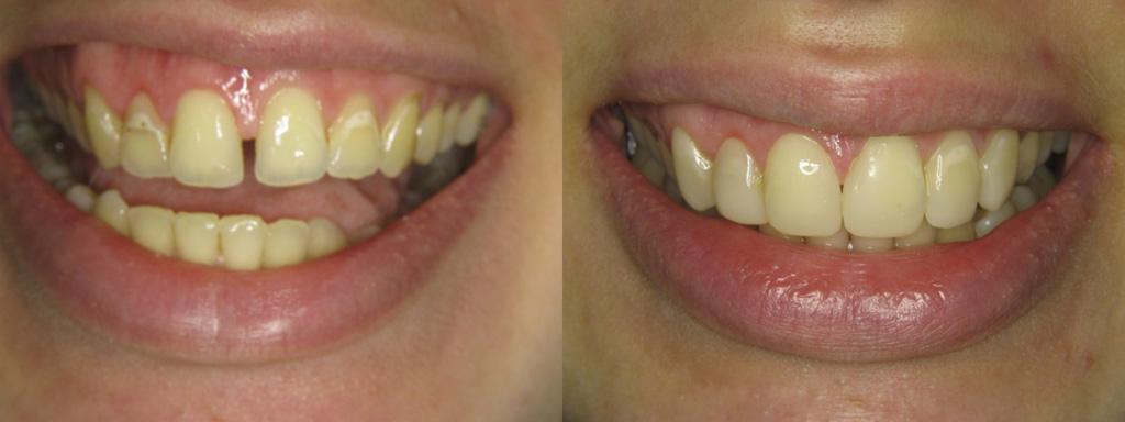 Искусство реставрации зубов
