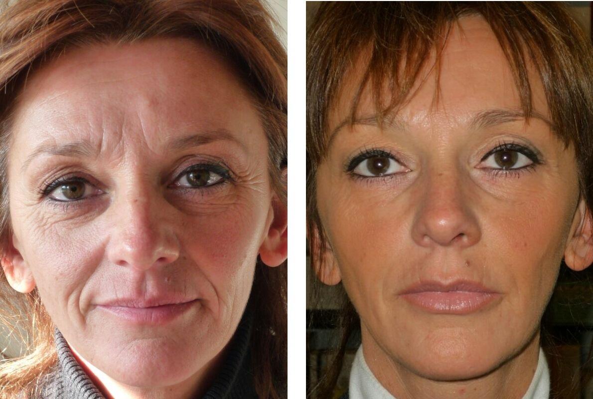 мезотерапия губ до и после